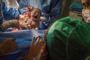 fotografia de nascimentos, fotografia de parto, fotografia documental, fotografia documental de parto, fotos de familia, maternidade, nascimento, parto humanizado, parto natural, cesarea, fotógrafo de nascimentos, fotógrafo de parto, clara sampaio fotografia